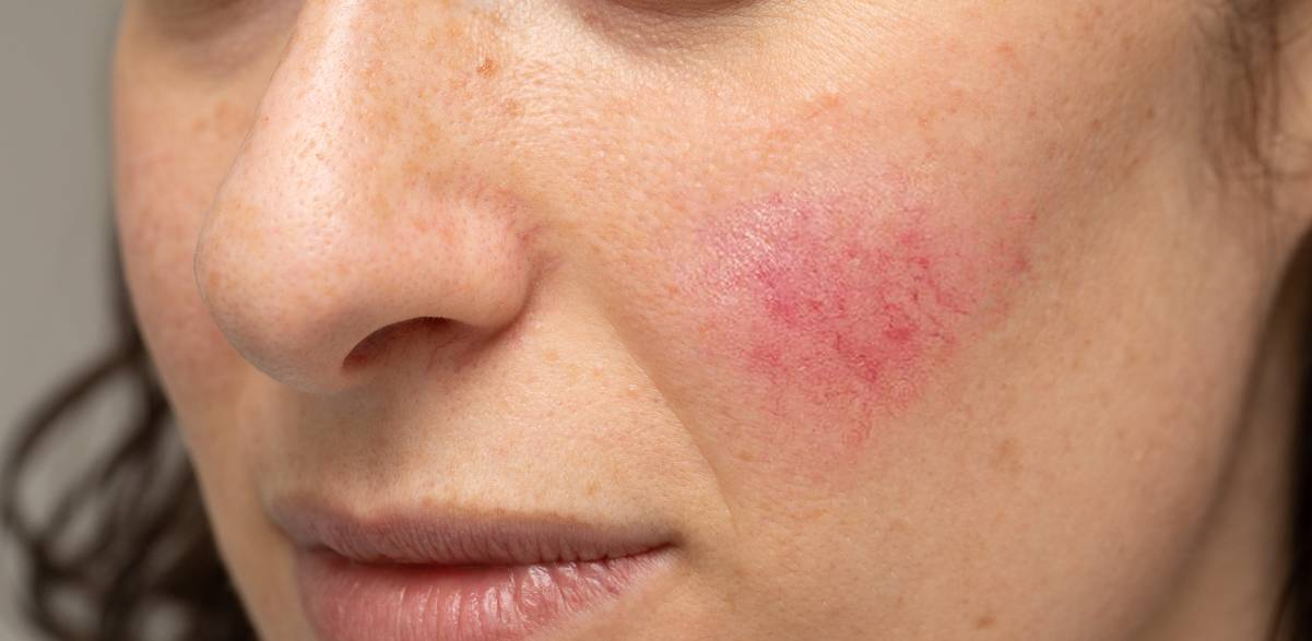Couperose / Rosacea Gauting